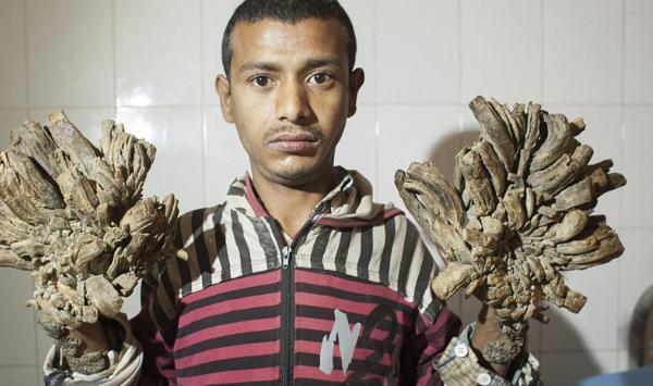 синдром деревянного человека